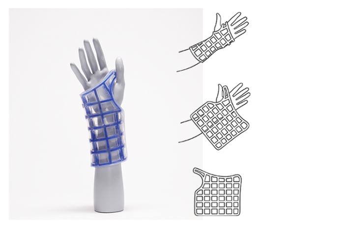 healthcare, innovation, reversible fixation, shape memory, shape memory material, reflex, re:flex, arm cast, design, reshape, reuse, recycle